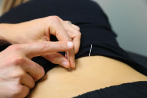 acupuncture-kansas-city - Dohrmann Chiropractic Kansas ...
